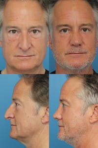 Male Rhinoplasty Gallery - Patient 37013139 - Image 1
