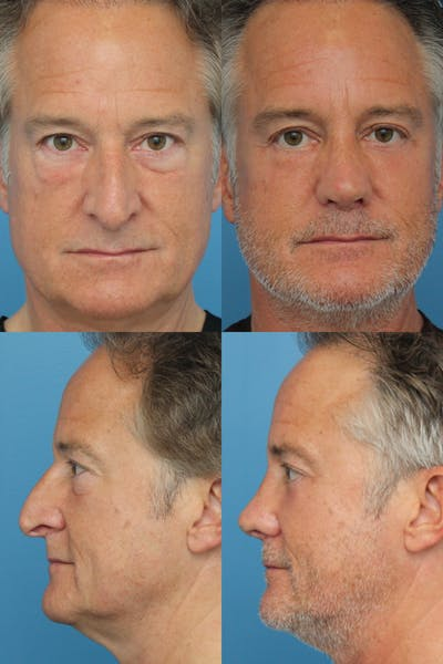 Revision Rhinoplasty Gallery - Patient 37013369 - Image 1