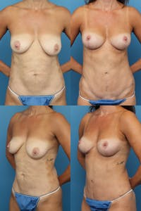 Mommy Makeover Gallery - Patient 41594330 - Image 1