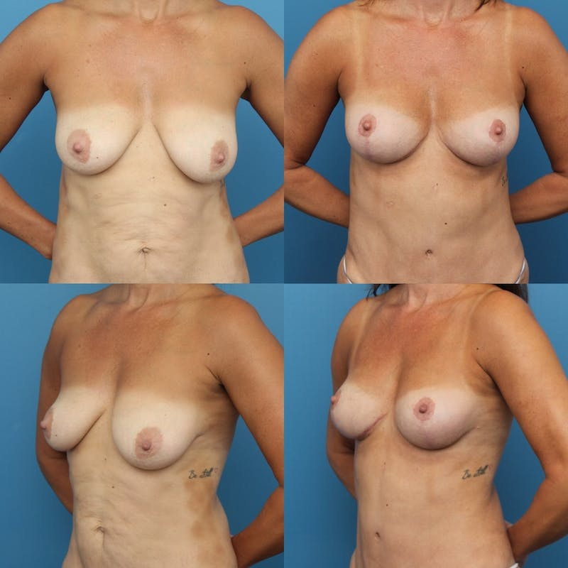 Lollipop Breast Lift with No Implants Gallery - Patient 41594345 - Image 1