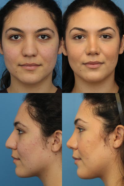 Thick Skin / Ethnic Rhinoplasty Gallery - Patient 41619191 - Image 1