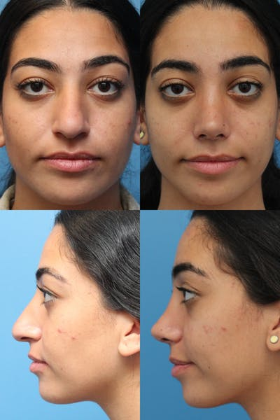 Thick Skin / Ethnic Rhinoplasty Gallery - Patient 41619192 - Image 1