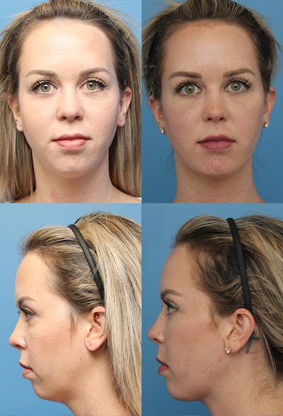 Liposuction: Female Gallery - Patient 44773942 - Image 1
