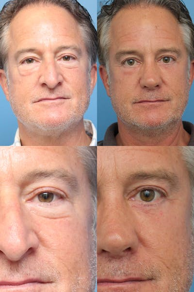 Lower Blepharoplasty Photo Gallery Gallery - Patient 47774133 - Image 1