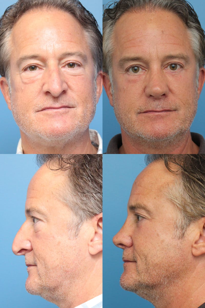 Revision Rhinoplasty Gallery - Patient 47774140 - Image 1