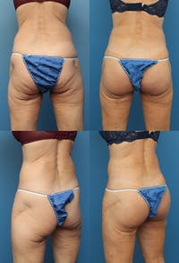 Buttock Augmentation with Implants – Female Gallery - Patient 48813729 - Image 1