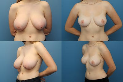 Breast Reduction Gallery - Patient 64974897 - Image 1
