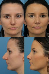 Rhinoplasty Gallery - Patient 67807365 - Image 1