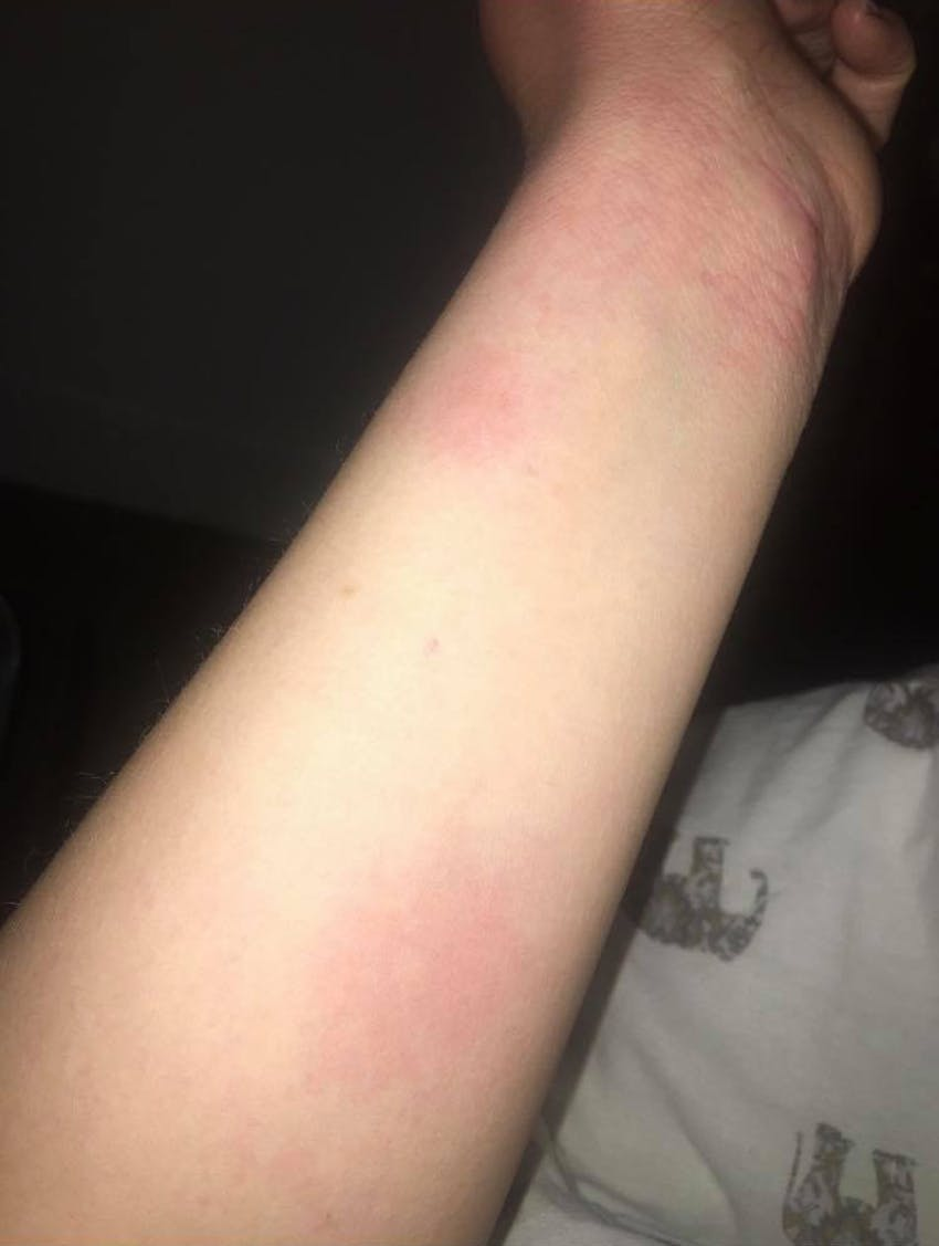 extended arm with red patches of hives and eczema