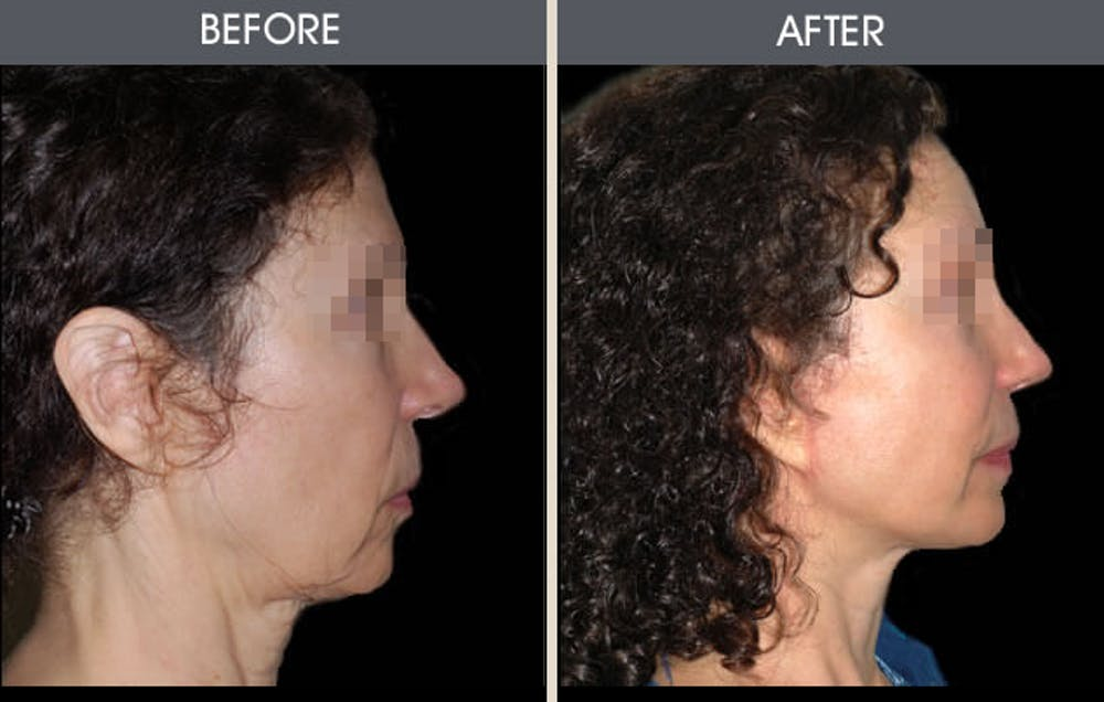 Facelift Gallery - Patient 2206167 - Image 1