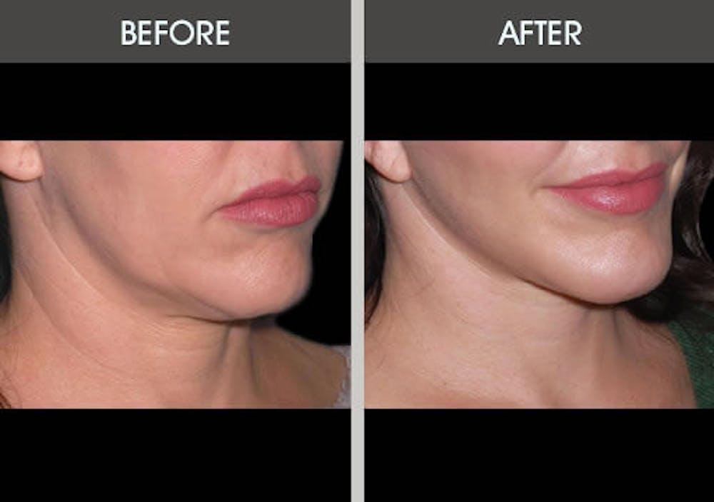 Facelift Gallery - Patient 2206186 - Image 1
