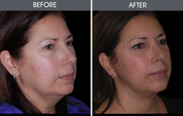 Facelift Results Greenwich NYC