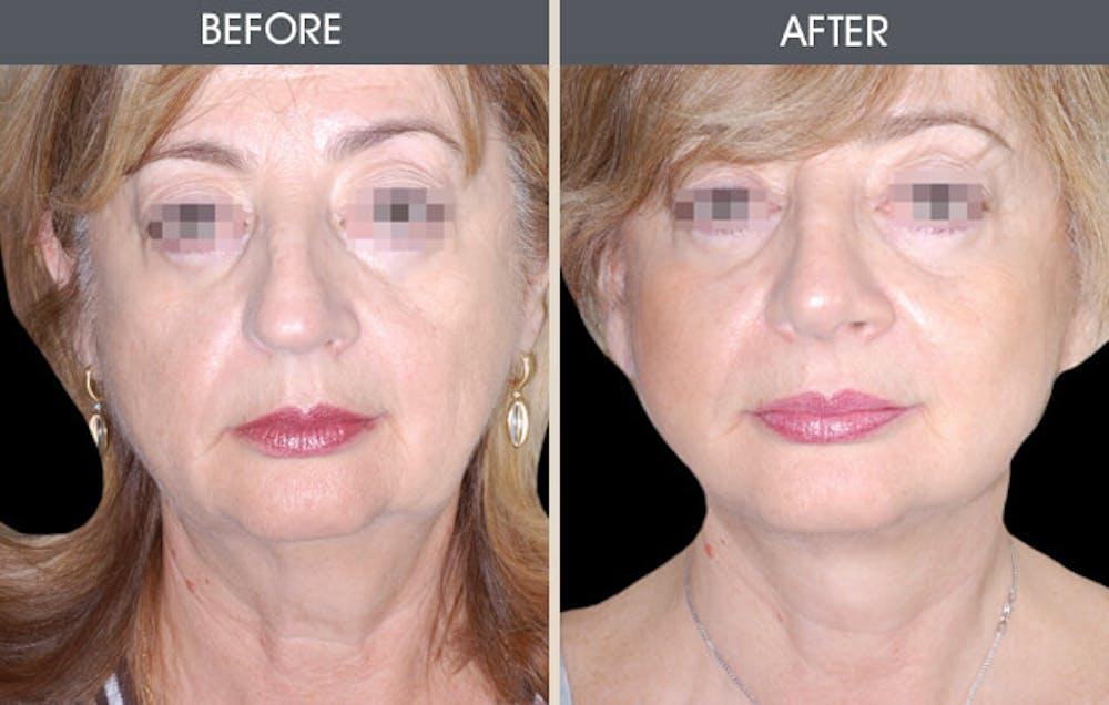 Facelift Gallery - Patient 2206246 - Image 1