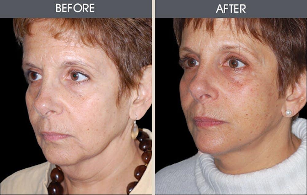 Facelift Gallery - Patient 2206273 - Image 1