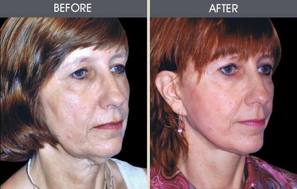 Facelift Gallery - Patient 2206289 - Image 1