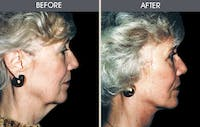 Facelift Gallery - Patient 2206325 - Image 1