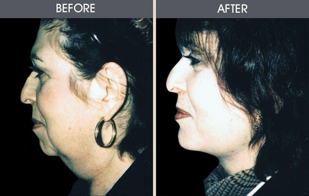Facelift Gallery - Patient 2206327 - Image 1