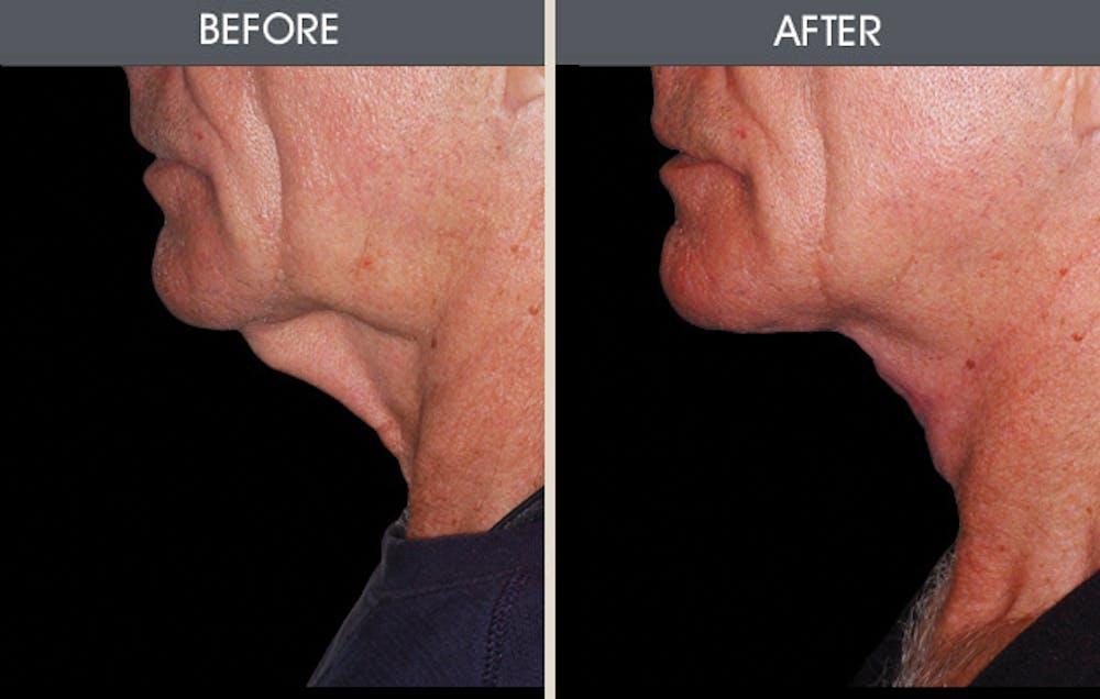Facelift Gallery - Patient 2206367 - Image 1