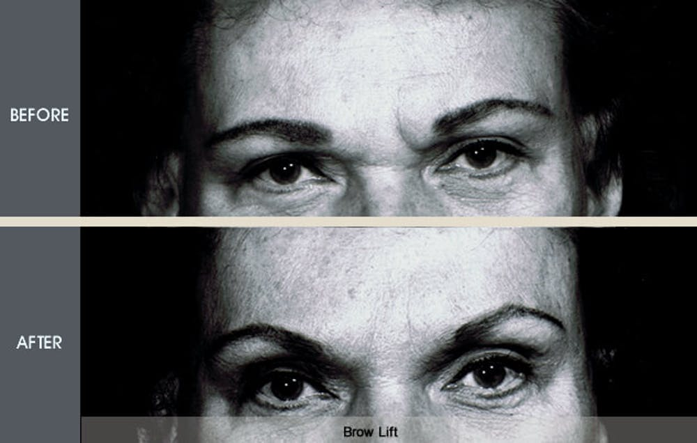 Browlift Gallery - Patient 2206366 - Image 1