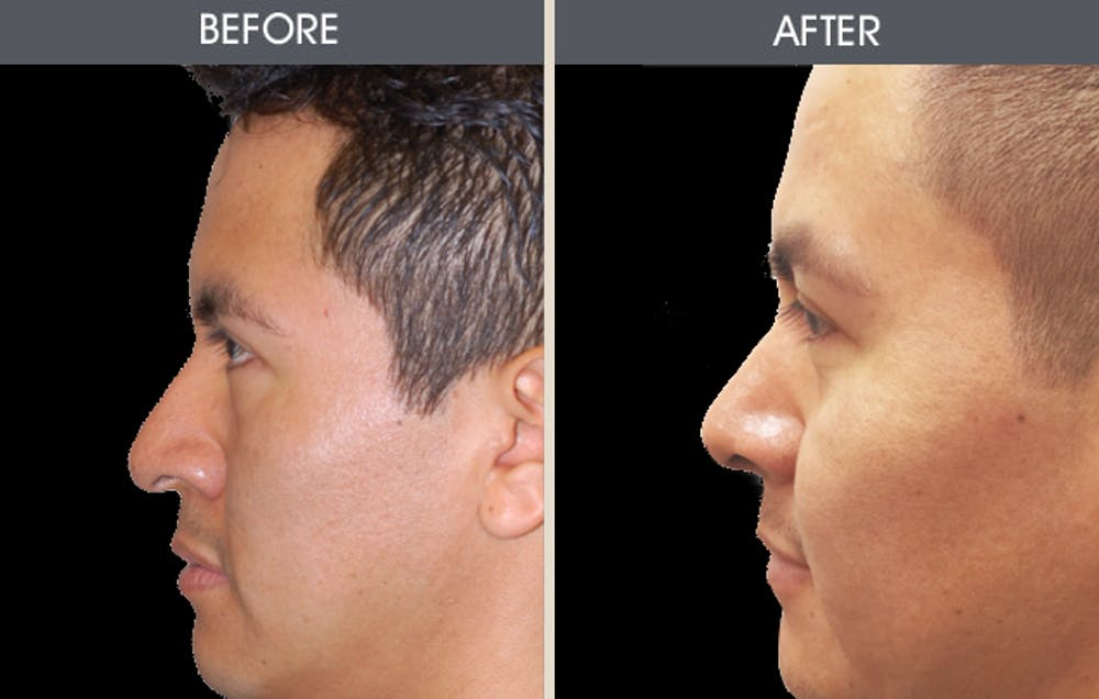 Rhinoplasty Gallery - Patient 2206417 - Image 1