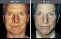 Facelift Gallery - Patient 2206447 - Image 1