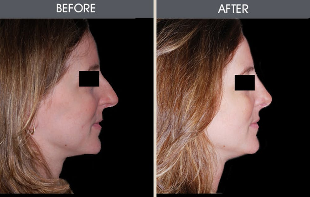 Rhinoplasty Gallery - Patient 2206458 - Image 1