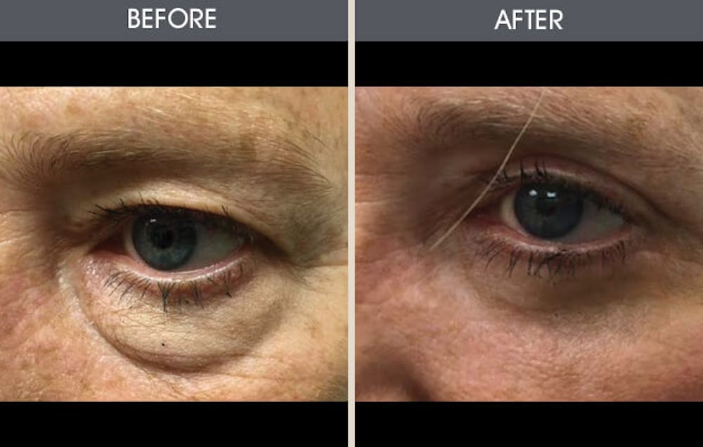 Eyelid Surgery Gallery - Patient 2206481 - Image 1