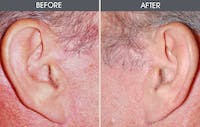 Facelift Gallery - Patient 2206487 - Image 1