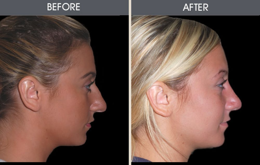 Rhinoplasty Gallery - Patient 2206498 - Image 1