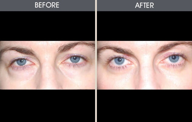 Eyelid Surgery Gallery - Patient 2206499 - Image 1