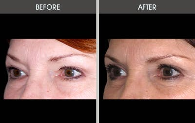 Eyelid Surgery Gallery - Patient 2206504 - Image 1