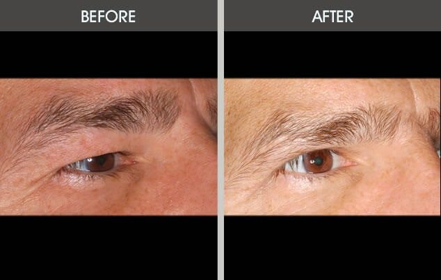 Eyelid Surgery Gallery - Patient 2206533 - Image 1