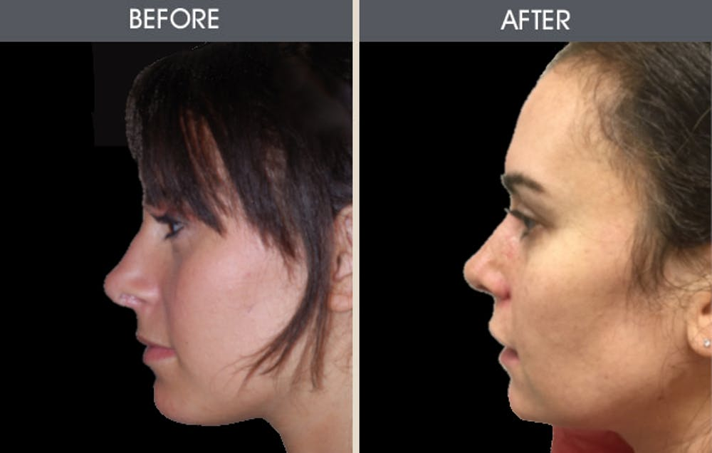 Rhinoplasty Gallery - Patient 2206534 - Image 1