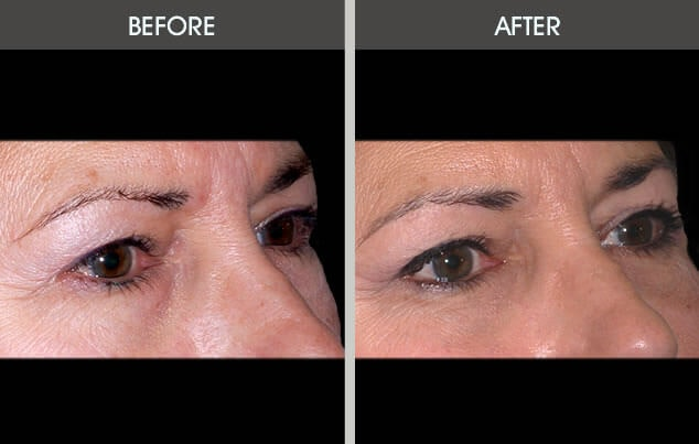 Eyelid Surgery Gallery - Patient 2206536 - Image 1