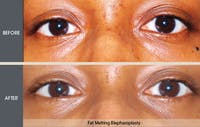 Eyelid Surgery Gallery - Patient 2206561 - Image 1