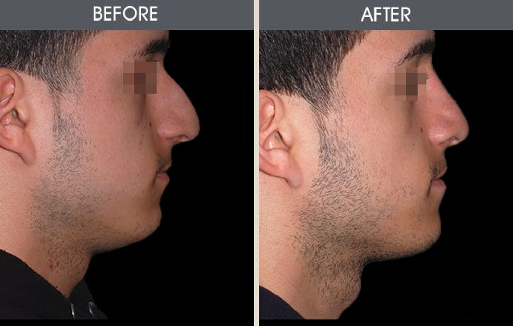 Rhinoplasty Gallery - Patient 2206571 - Image 1