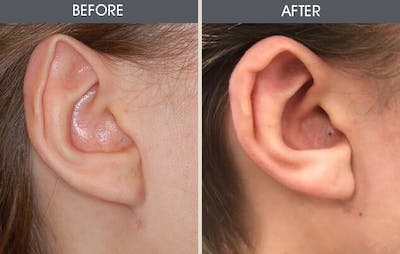 Ear Surgery Gallery - Patient 2206585 - Image 1