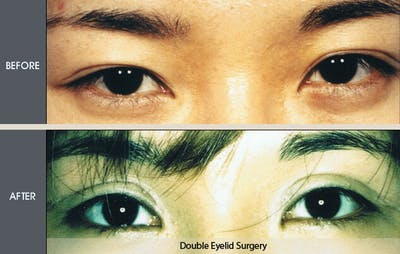 Eyelid Surgery Gallery - Patient 2206586 - Image 1