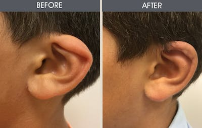Ear Surgery Gallery - Patient 2206611 - Image 1