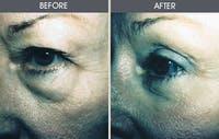 Eyelid Surgery Gallery - Patient 2206615 - Image 1