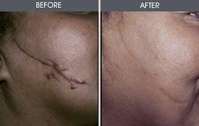 Scar Revision Gallery - Patient 2206629 - Image 1