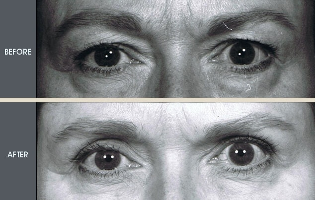 Eyelid Surgery Gallery - Patient 2206628 - Image 1