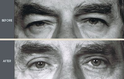 Eyelid Surgery Gallery - Patient 2206645 - Image 1