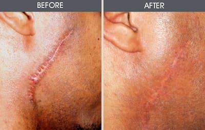 Scar Revision Gallery - Patient 2206648 - Image 1
