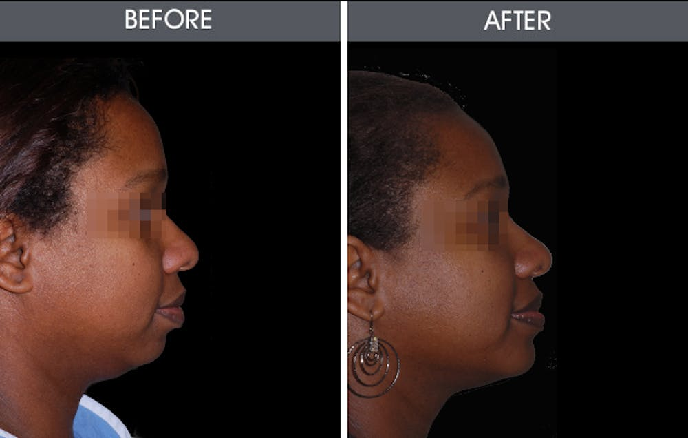 Chin Implants Gallery - Patient 2206735 - Image 1