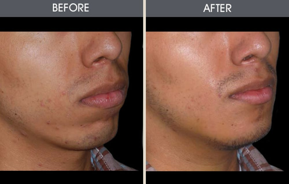 Chin Implants Gallery - Patient 2206752 - Image 1