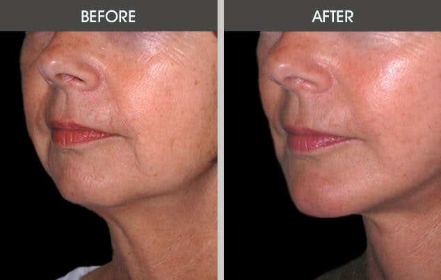 Chin Implants Gallery - Patient 2206771 - Image 1