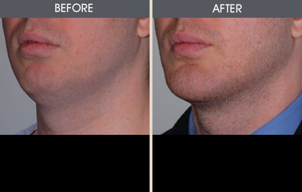 Chin Implants Gallery - Patient 2206773 - Image 1