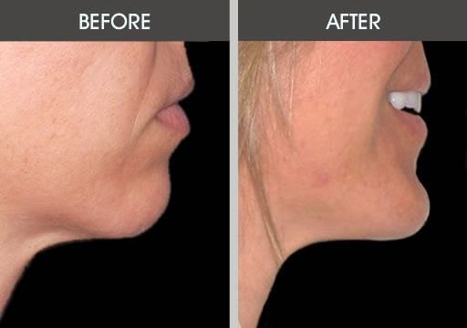 Chin Implants Gallery - Patient 2206791 - Image 1