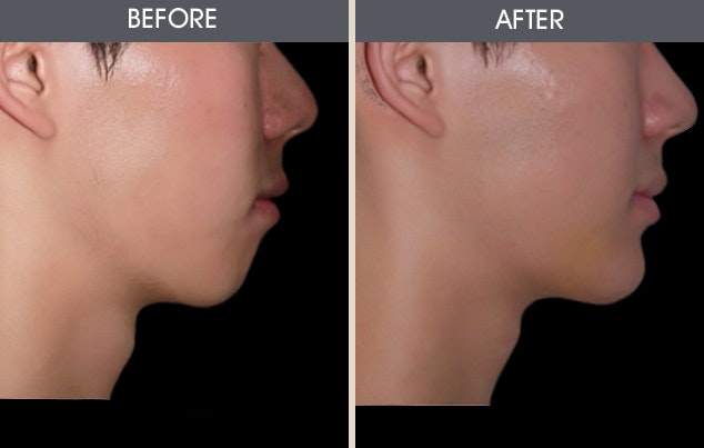 Chin Implants Gallery - Patient 2206796 - Image 1